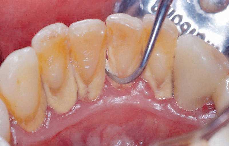 Как почистить зубы от камня в домашних условиях человеку